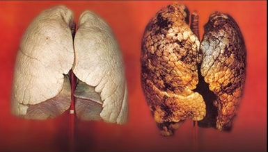 pulmón sano y pulmón de un fumador