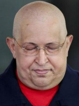 Empeora el estado de salud de Chávez