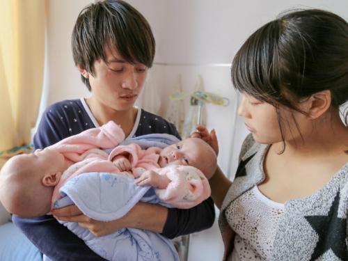 La Fundación LWB España pide tu ayuda para costear la operación que logrará separar a estos dos bebés