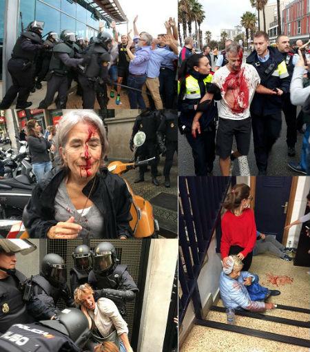 #1OCT Ya son 337 los heridos por la actuación de los antidisturbios en Cataluña