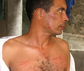 El médico Darsi Ferrer muestra las heridas que le causaron durante la detención.