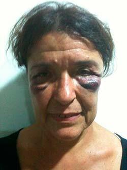 Carmen Rocer, una de las agredidas.