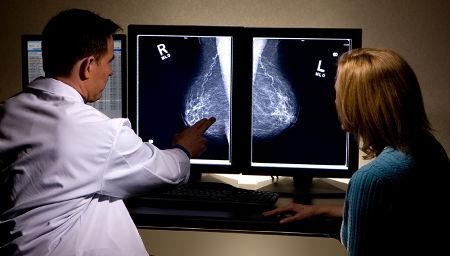 mammografía