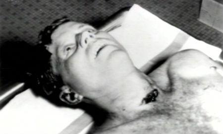 Kennedy muerto
